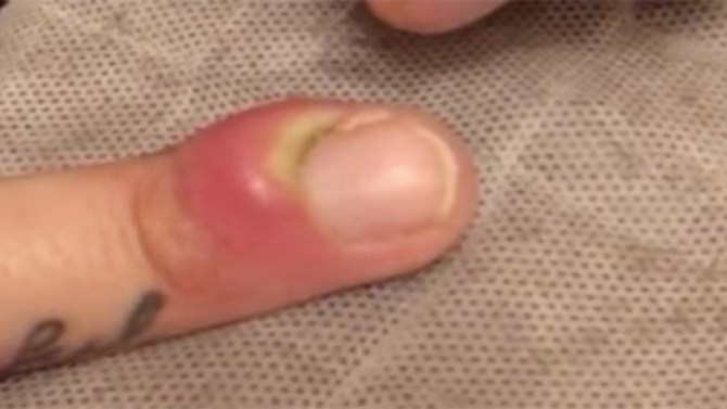 how to heal infected finger cut